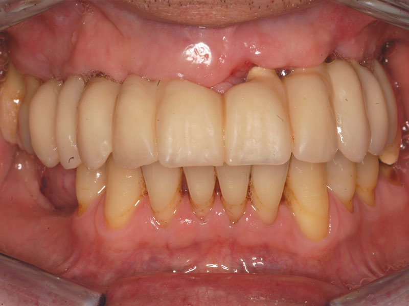 after picture of patient with perio disease