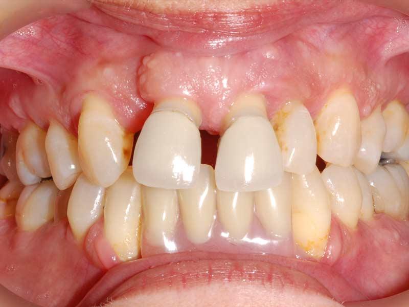 advanced periodontal disease