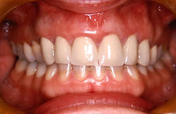 after gum lengthening