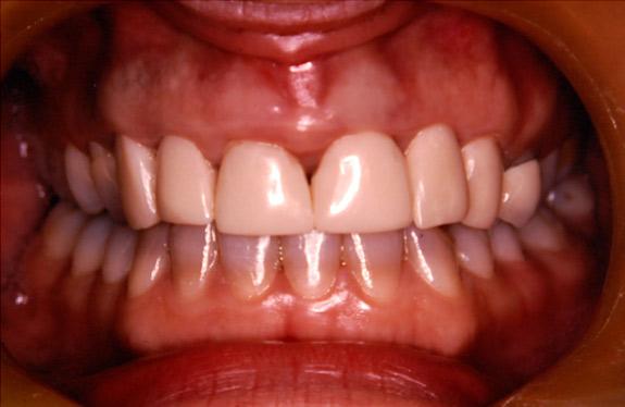 before gum lengthening