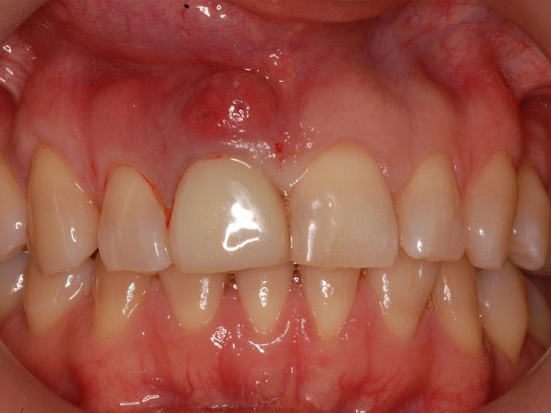 single-implant-1